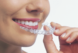 invisalign-treatment-saginaw-mi-veera-family-dentistry-sm