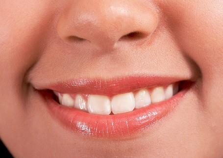 Bright White Smile | Veera Family Dentistry